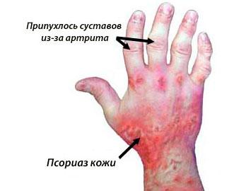 Биохимические изменения в крови при псориазе