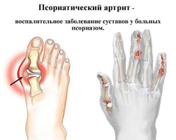 Чем снять отек при псориатическом артрите