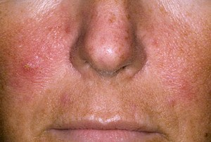 Борьба с псориазом на лице