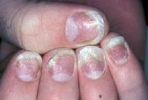 Псориаз на ногтях рук как лечить