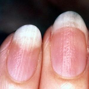 Классификация псориаза ногтей