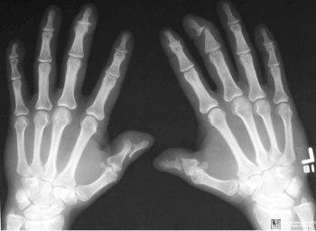 рентгенография при псориатическом артрите