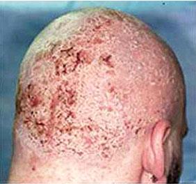 Последствия и опасности кожного заболевания псориаз
