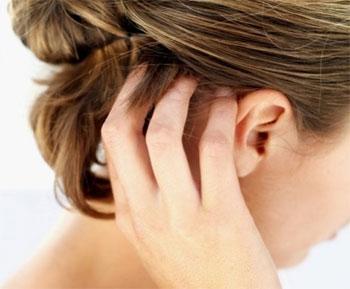 Псориаз - Симптомы и лечение народными средствами в домашних условиях
