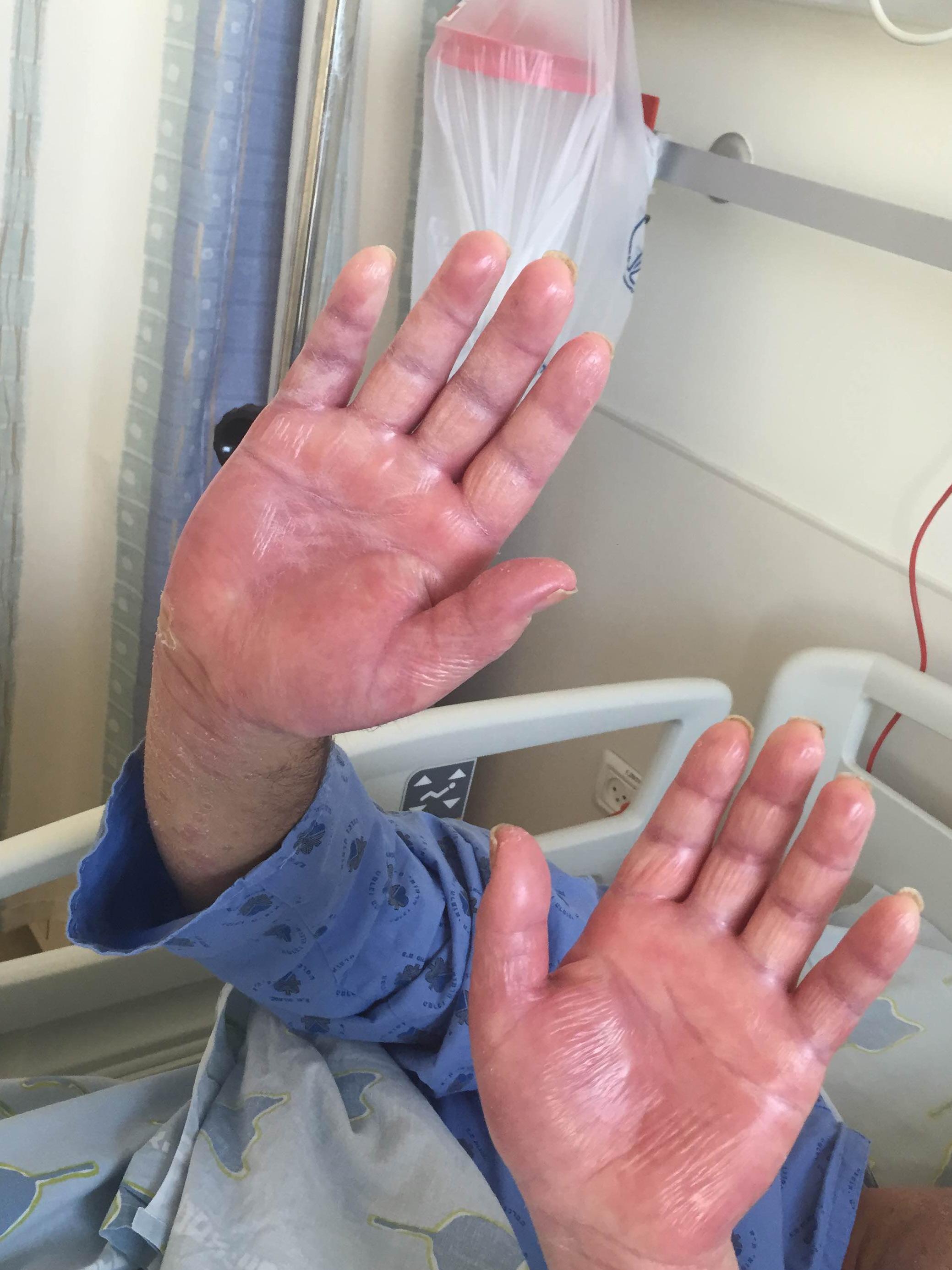 Стоимость лечения псориаза в Израиле
