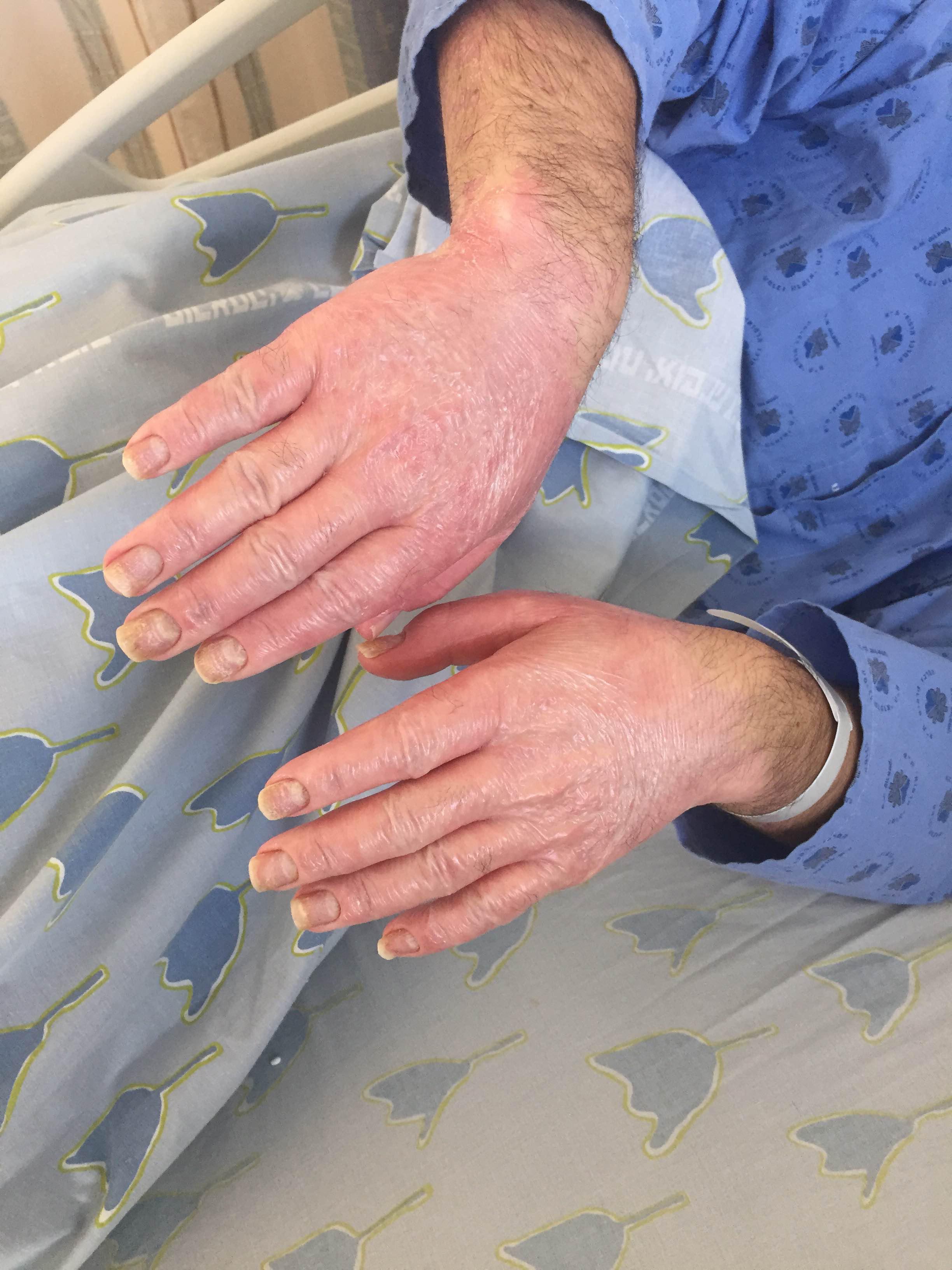 Общая информация о лечение псориаза