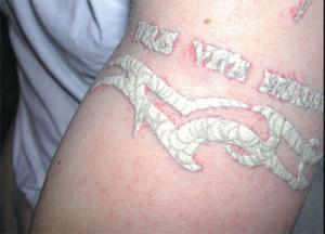 Псориаз на татуировке фото
