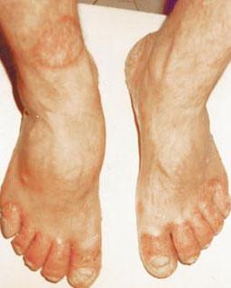 Фото псориаза ногтей на руках 5