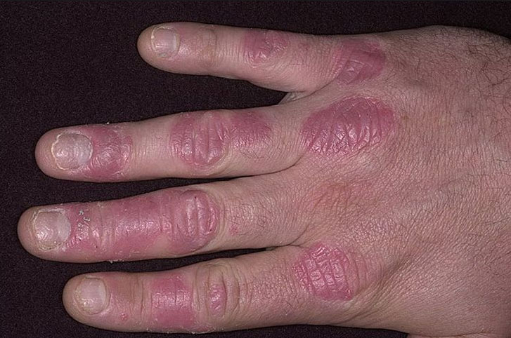 Вульгарный (бляшечный) псориаз что это такое лечение причины диагностика