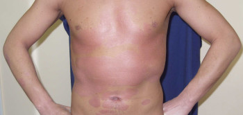 После процедуры ПУВА-терапии